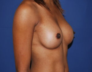 Augmentation mammaire apres