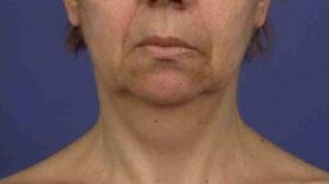 lifting cervico-facial avant