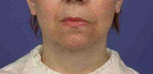 lifting cervico-facial après